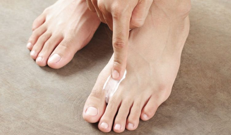 Antifungal Cream for Foot Infection