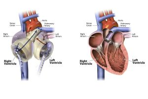 Artificial Heart Transplant