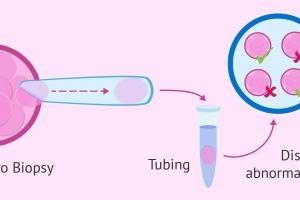 Pre-Implantation Genetic Diagnosis (PGD) Market